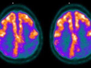 NSoR 5: The Neurosciences of Religion