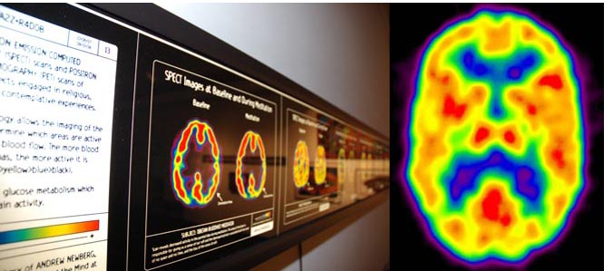 SPECT Images of Brains at Prayer